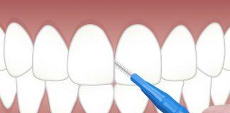 necroza dentara
